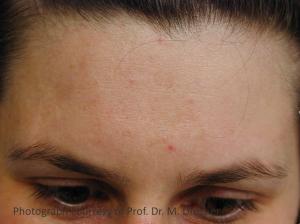 Huidpunt acne